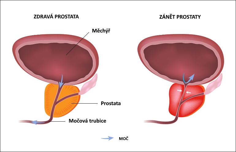 Prostatitida